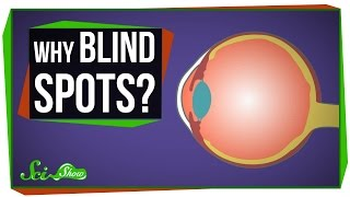 Why Do We Have Blind Spots?