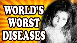 Top 10 Infectious Diseases — TopTenzNet