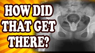 Top 10 Craziest Things Ever Found in the Human Body — TopTenzNet
