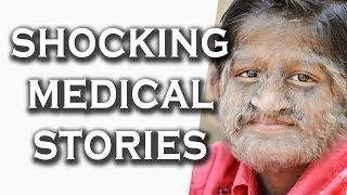 Top 10 Shocking Medical Stories