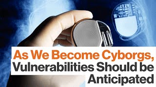 Hackers Will Be Tempted by Cyborg Vulnerabilities