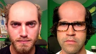 Why Bald is Better