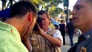 Trump Supporters Attacked At Rally In San Jose