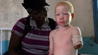 The Extreme Oppression Of Albinos In Africa