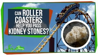 Can Roller Coasters Help You Pass Kidney Stones?