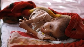 Saudi Arabia Is Deliberately Starving Yemen - With Help From The West