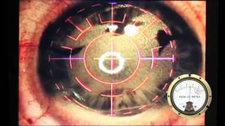 Intralase LASIK Procedure with Fear-o-meter and Pain-o-meter