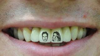 TATTOO TEETH -- Weirdos of the Month #2
