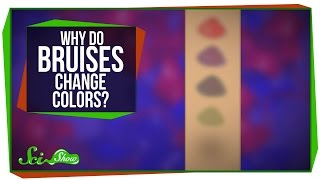 Why Do Bruises Change Colors?