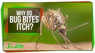 Why Do Bug Bites Itch?