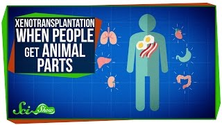 Xenotransplantation: When People Get Animal Parts